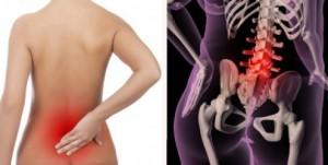 dor-lombar-osteoporose