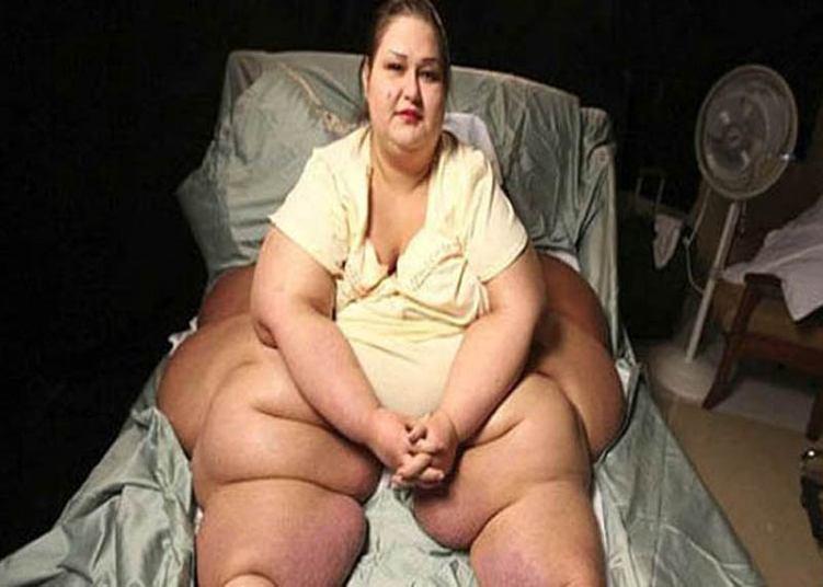 Hospital Regional de Joinville realiza Simpósio Obesidade Mórbida e Encontro de Cirurgia Bariátrica