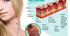 PalavraLivre-cancer-de-pele-melanoma