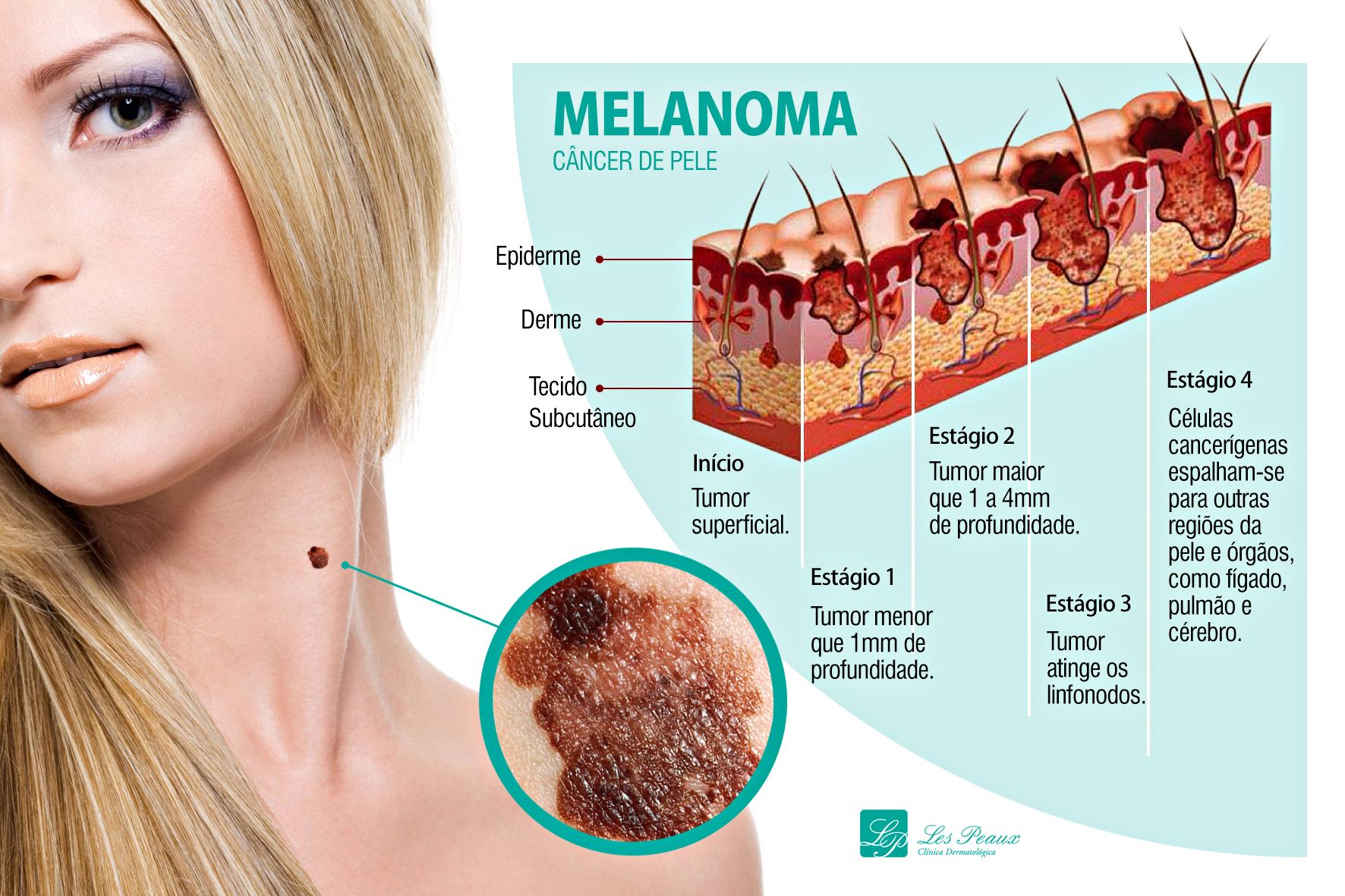 Câncer de pele é o que tem maior incidência no país