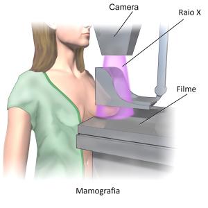 palavralivre-mamografia